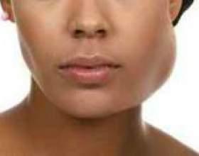 Запалення слинних залоз: причини, симптоми і лікування фото