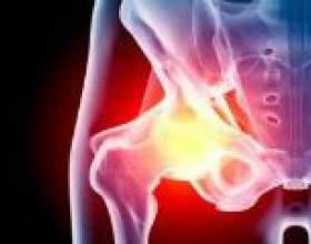 Запалення тазостегнового суглоба: симптоми, лікування фото