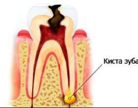 Чи можливо лікування кісти зуба без видалення фото