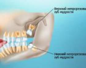 Можливі наслідки при прорізуванні і видаленні зуба мудрості фото
