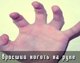 Врослий ніготь на руці фото