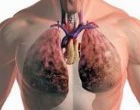 Всі види лікування туберкульозу легенів фото