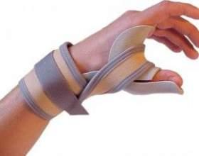 Вивих пальця руки - причини, симптоми і лікування фото