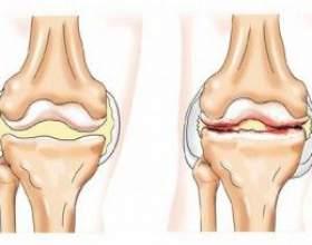 Вивих тазостегнового суглоба - причини, симптоми і лікування фото