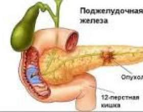 Захворювання підшлункової залози фото