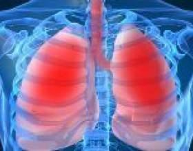 Закрита і відкрита форма туберкульозу фото