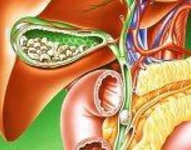 Жовчнокам`яна хвороба: симптоми, діагностика, лікування фото