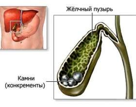 Жовчнокам`яна хвороба: симптоми і попередження фото