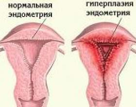 Залозисто-кістозна гіперплазія ендометрію фото