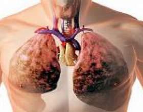 Рідина в легенях: причини, симптоми, лікування фото