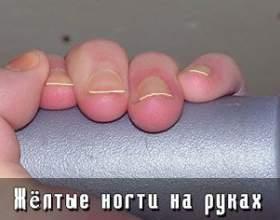 Жовті нігті на руках фото