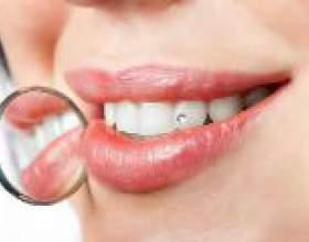 Зубна пломба - критерії вибору фото