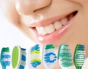 Зубний камінь - як не залишитися без зубів? фото